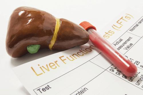 Liver Cirrhosis diagnosis