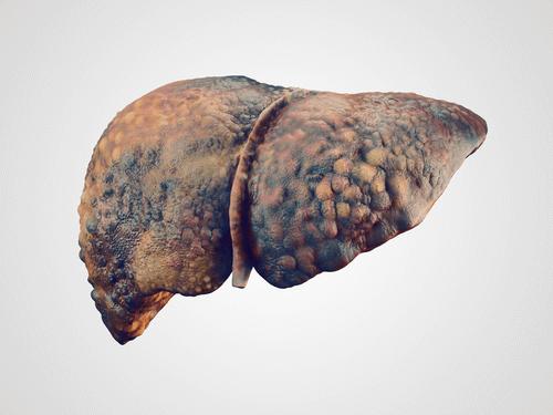 Liver cirrhosis realistic