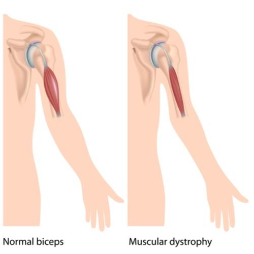 Muscular dystrophy diagram