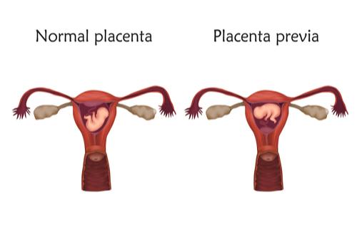 PLACENTA PREVIA vs normal