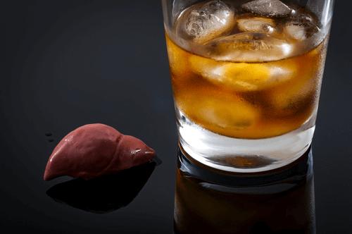Portal hypertension liver
