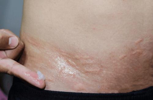 Prickly heat rash treatment