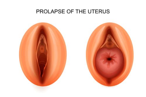 Prolapsed uterus diagram