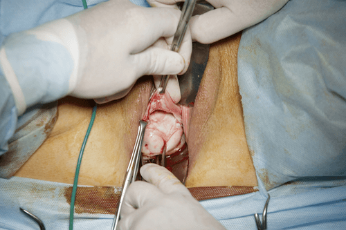 Prolapsed uterus surgery