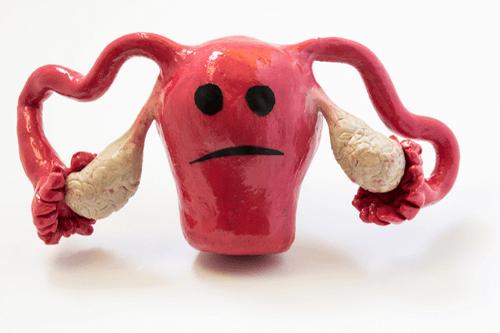 Prolapsed uterus