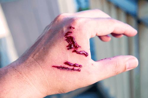 Rabies dog bite