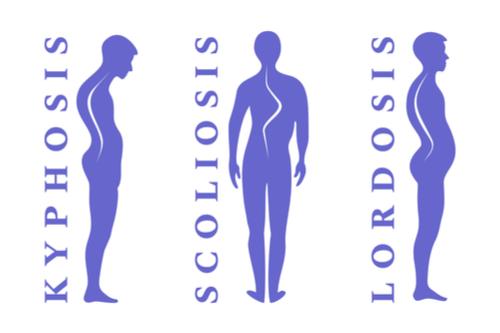 Stickler syndrome spine