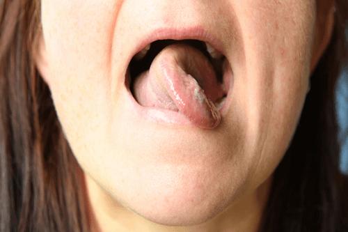 Stuttering affected woman