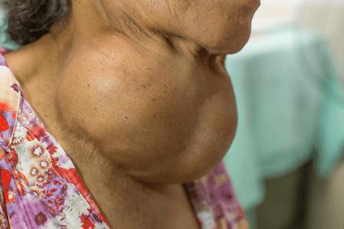 Thyromegaly goitre