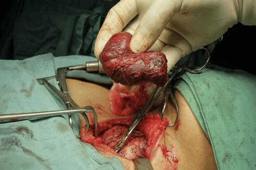 Thyromegaly surgery