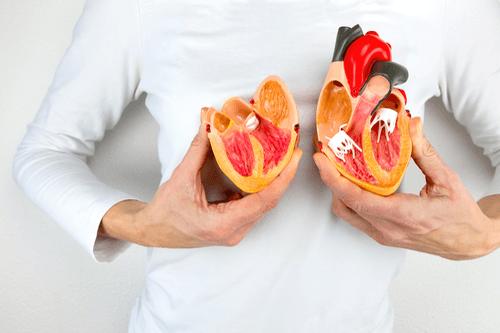 Ventricular diseases heart