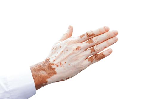 Vitiligo hands
