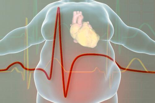 Weight gain & heart