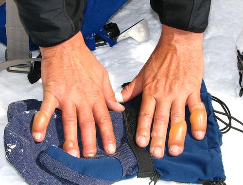 Winter Skin Hazards_frostbite