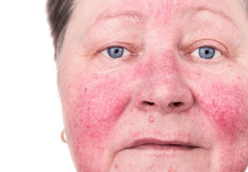 Winter skin hazard_rosacea