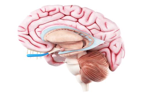 arachnoid cyst brain anatomy