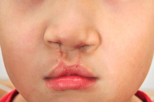 stickler sundrome cleft