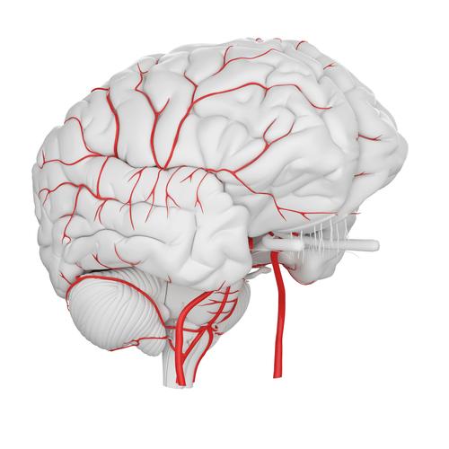 temporal arteritis brain