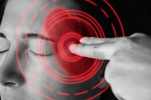 temporal arteritis headache