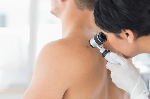 ACTINIC KERATOSIS and cancer