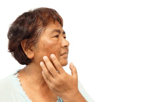ADDISON'S DISEASE skin