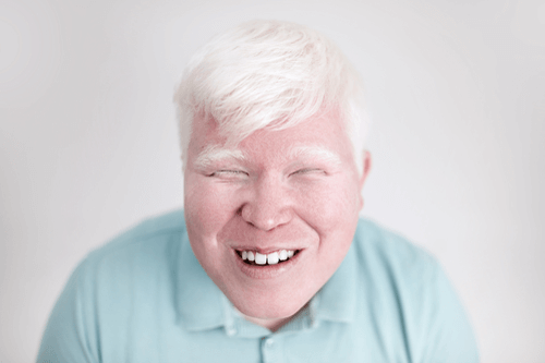 Albinism adult