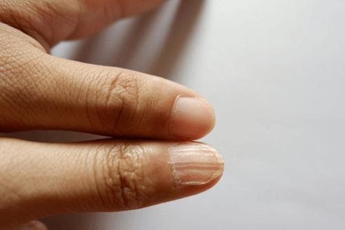 Anaemia nails