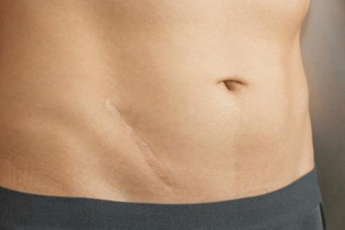 Appendicitis scar