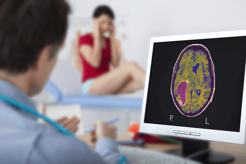 BRAIN CANCER diagnosis