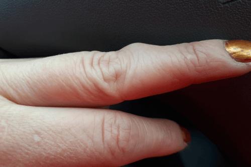 Benign tumours hand