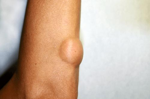 Benign tumours lipoma