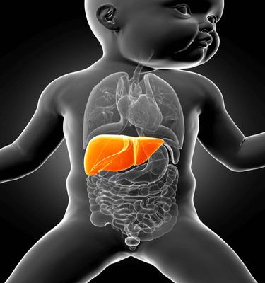 Biliary atresia infant
