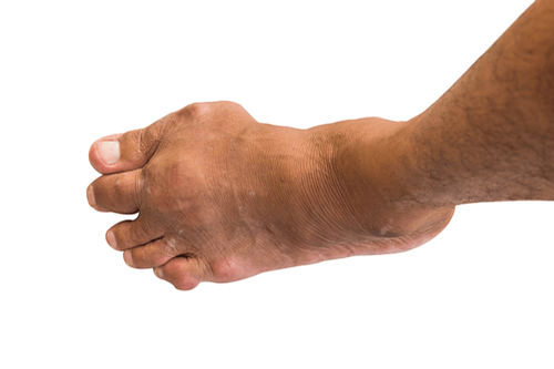 Bone tumor gout