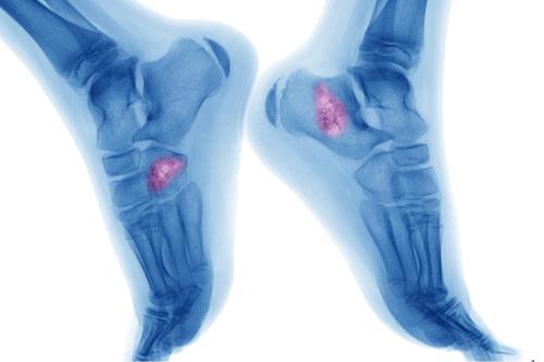 Bone tumor mri