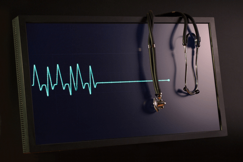 Congestive Heart Failure ekg