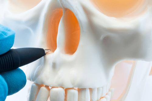 DEVIATED SEPTUM nose