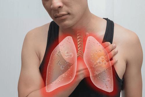 EMPYEMA lungs