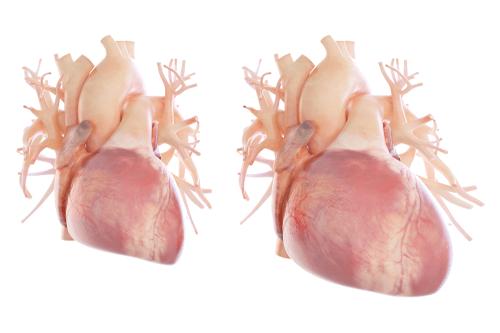 ENLARGED HEART diagram