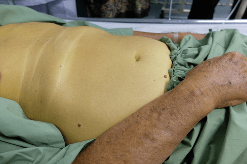 Enlarged liver jaundice
