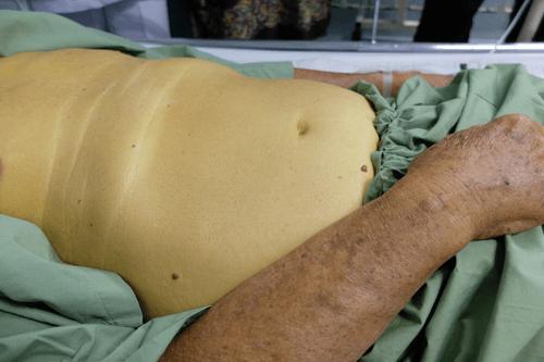 Enlarged liver jaundice
