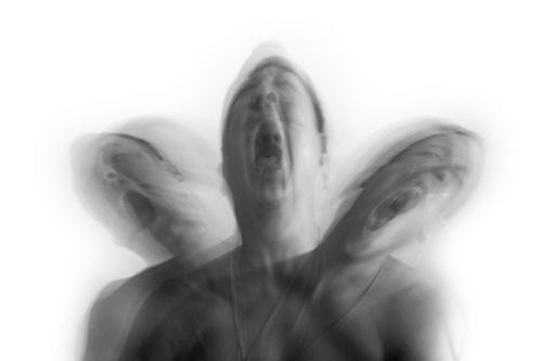 Epilepsy attack