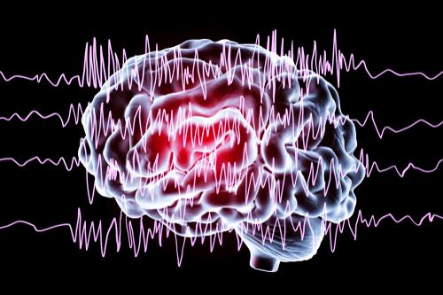 Epilepsy brain waves