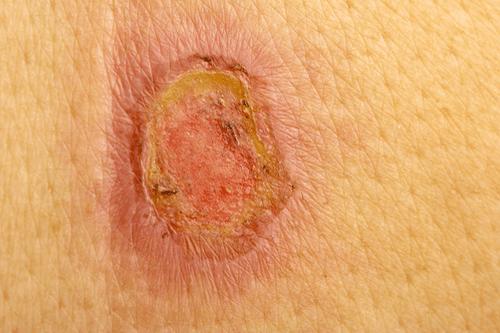 FROSTBITE wound