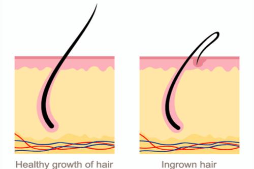 Ingrown hair diagram