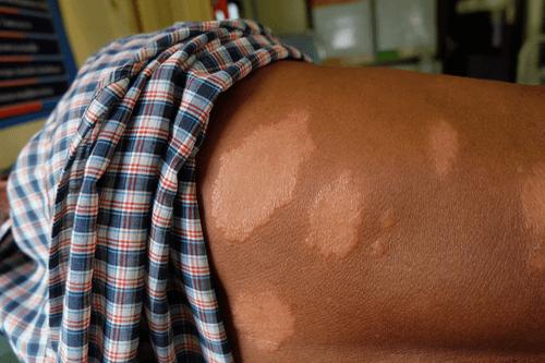 LEPROSY skin