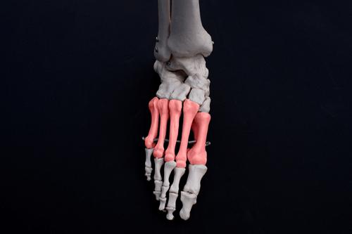 METATARSALGIA bones
