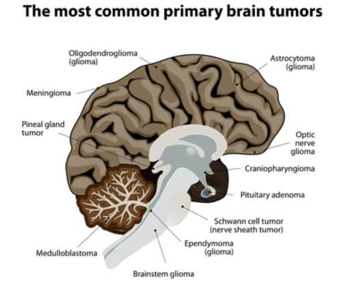 Meningioma tumors
