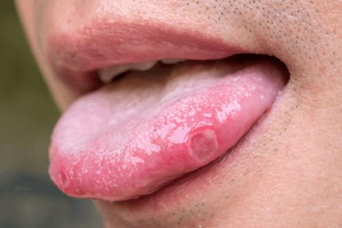 NEUTROPENIA ulcers