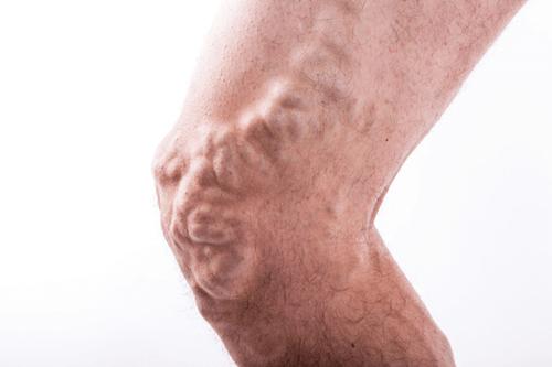 PHLEBITIS knees