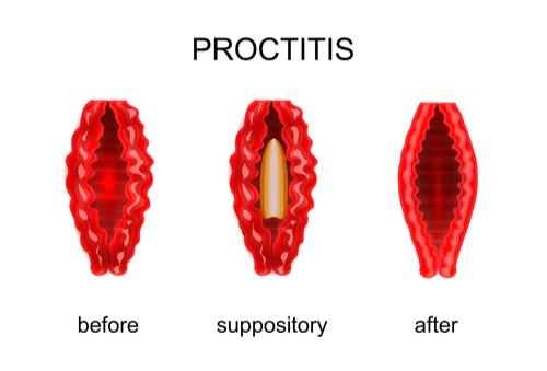 Proctitis treatment